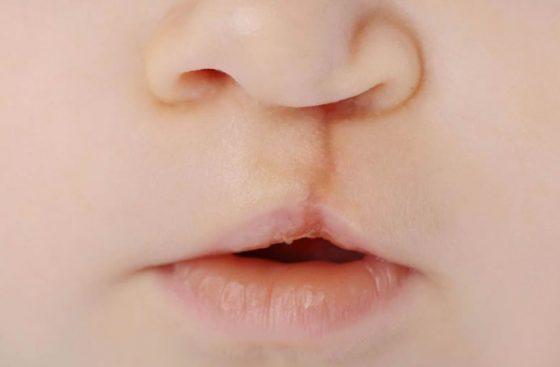yarık dudak damak